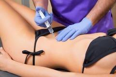 Mujer mesotherapy abdominal del tol del doctor de la terapia Imagen de archivo libre de regalías