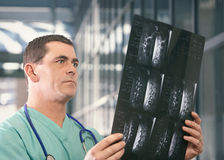 Doctor with mri x-ray. Doctor viewing mri x-ray of spine and backbone Stock Photography