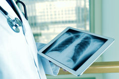 Doctor observing a chest radiograph in a tablet Royalty Free Stock Photography