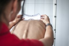 Posture and scoliosis. Doctor performs a medical examination on a patient diagnosed with scoliosis stock photography