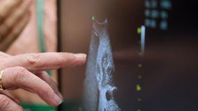 Doctor points to the ultrasound screen with his finger