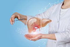 A doctor putting a puzzle into liver treatment model. A doctor is putting the missing puzzle into the liver modal with the inflammation in it. The concept of stock image