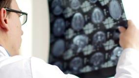 Doctor que busca un problema en la exploración del cerebro MRI CT en hospital Vídeo de UltraHD almacen de video