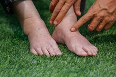 Doctor que evalúa un pie hinchado mayor Foto de archivo libre de regalías
