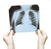 Doctor que examina la radiografía Imagenes de archivo