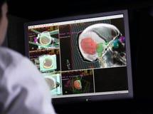 Doctor que examina una exploración de cerebro en el ordenador fotos de archivo libres de regalías