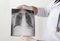 Doctor que examina una radiografía del pulmón Imagen de archivo libre de regalías