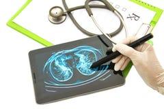 Doctor que mira imagen de la radiografía del pecho en la tablilla Foto de archivo libre de regalías