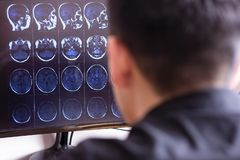 Doctor radiologist in hospital looking at mri x-ray scan of brain, head and skull ct scanning image on computer screen stock photos