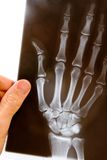 Doctor with x-ray of hand. A male doctor holds up an x-ray of a hand to examine it Stock Photo