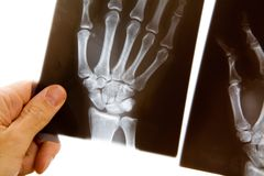 Doctor with x-ray of hand. A male doctor holds up an x-ray of a hand to examine it royalty free stock photo