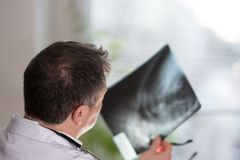 Doctor reading X-ray images Stock Photography