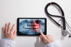 Doctor`s Hand And Digital Tablet Screen Showing Teeth X-ray. With Stethoscope On White Desk royalty free stock photo