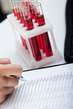 Doctor's medical notes and blood samples. Doctor's medical notes with background of blood samples Royalty Free Stock Image