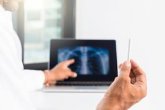 Doctor explaining lungs x-ray on computer screen to patient stock photos