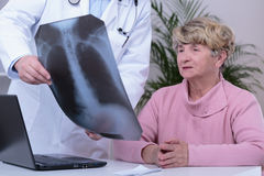 Doctor showing patient chest x-ray Stock Images