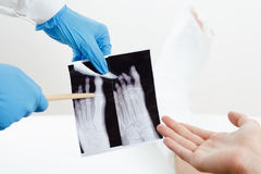 Doctor showing patient x-ray image of a broken finger leg in plaster Royalty Free Stock Image