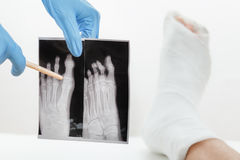 Doctor showing patient x-ray image of a broken finger,leg in plaster lying on the couch, on white Royalty Free Stock Images