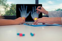 Doctor showing a x-ray of hand with pains on the wrists on a laptop to a woman patient. Pills on the desk. Osteoarthritis concept. Doctor showing a x-ray of hand stock photo