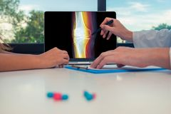 Doctor showing a x-ray of leg with pain in the bones on a laptop to a woman patient. Pills on the desk. Doctor showing a x-ray of leg with pain in the bones on a royalty free stock photos