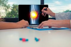 Doctor showing a x-ray of leg with pain in a knee on a laptop to a woman patient. Pills on the desk. Doctor showing a x-ray of leg with pain in a knee on a royalty free stock images