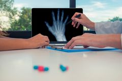 Doctor showing a x-ray of a right hand on a laptop to a woman patient. Pills on the desk. Osteoarthritis concept. Doctor showing a x-ray of a right hand on a stock image