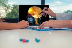 Doctor showing a x-ray of skull with pain in front of the brain on a laptop to a woman patient. Headache migraine concept. Doctor showing a x-ray of skull with stock photos