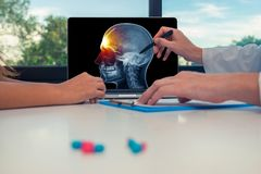 Doctor showing a x-ray of skull with pain in the front of head on a laptop to a woman patient. Headache migraine or trauma concept. Doctor showing a x-ray of royalty free stock images