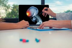 Doctor showing a x-ray of skull with pain in front of the head on a laptop to a woman patient. Headache migraine or trauma concept. Doctor showing a x-ray of stock image