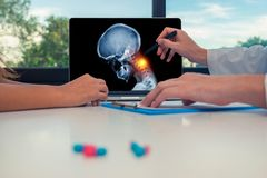 Doctor showing a x-ray of skull with pain in the neck on a laptop to a woman patient. Headache migraine or trauma concept. Doctor showing a x-ray of skull with stock photo