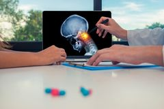 Doctor showing a x-ray of skull with pain in top of the neck on a laptop to a woman patient. Headache migraine or trauma concept. Doctor showing a x-ray of skull royalty free stock photo