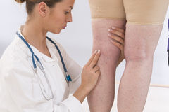 Doctor showing varicose veins of  an elderly woman Royalty Free Stock Photography