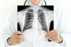 Doctor showing x-ray image of normal man chest Royalty Free Stock Photo