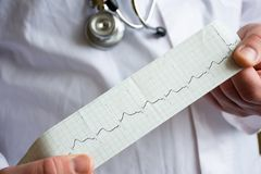 Doctor shows colleagues or patient strip with ECG pulse line in hands in foreground with stethoscope and white medical coat on bl. Urry background. Concept photo stock image