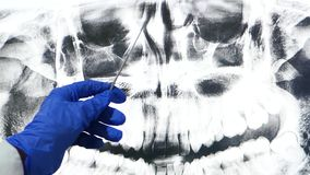 The doctor shows an x-ray on a large screen, examining the nasal cavity. Modern medicine and technology.