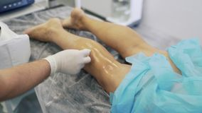 Doctor in sterile gloves wets cotton in disinfectant fluid, disinfects patient leg before varicose vein surgery. Concept of phlebology, sclerotherapy stock video footage