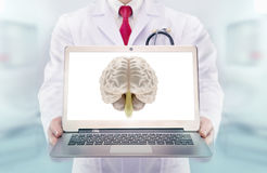 Doctor with stethoscope in a hospital. Brain on the laptop monitor Stock Photos