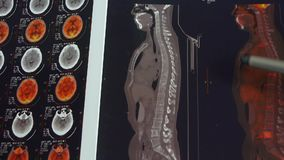 Doctor study color head & vertebral pet-ct,skull brain X-ray. stock video