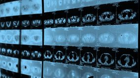 Doctor study human orage & bone pet-ct scan,X-ray,Cancer metastasis. Gh2_06291 stock footage