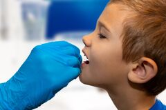 Free Doctor Tacking A Strep Test With A Medical Swab To The Throat. Doctor Sick Visit Royalty Free Stock Photos - 176852478