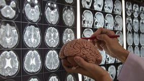 Doctor teaching brain anatomy. Doctor holding brain model and teaching brain anatomy on MRI imaging stock footage