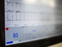 Doctor visit. S a young girl with electrocardiogram during cyclette Stock Images