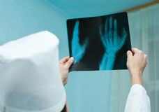 Doctor watches X ray film Royalty Free Stock Photo
