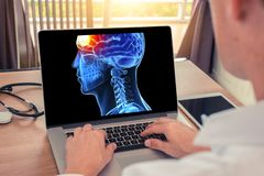 Doctor watching a laptop with x-ray of 3D skull head and pain front of brain. Migraine headache or trauma concept. Doctor watching a laptop with x-ray of 3D stock images