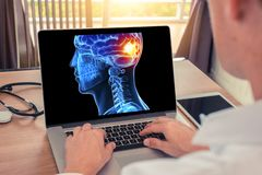 Doctor watching a x-ray of 3D skull head and pain back of the brain on a laptop. Migraine headache or trauma concept. Doctor watching a x-ray of 3D skull head royalty free stock images