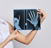 Doctor woman hands hold X-ray examination. On gray background royalty free stock photography