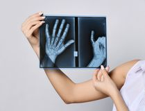 Doctor woman hold hands X-ray examination on gray. Background stock photography