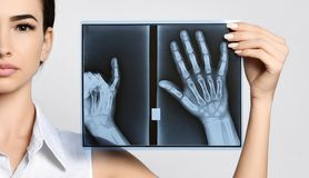 Doctor woman hold hands X-ray examination on gray. Background stock image