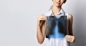 Doctor woman hold lungs X-ray examination of patient chest on gray. Background stock photo
