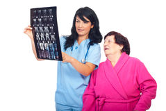 Doctor woman review MRI with her elderly patient royalty free stock photography